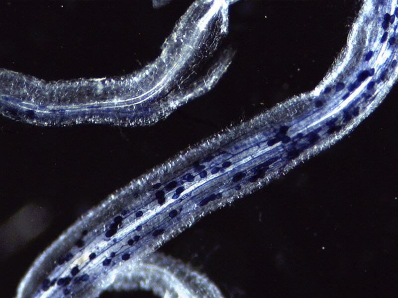Stained plant roots as seen under a microscope.